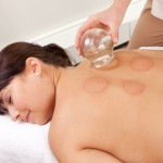 Cupping – An Ancient Chinese Remedy
